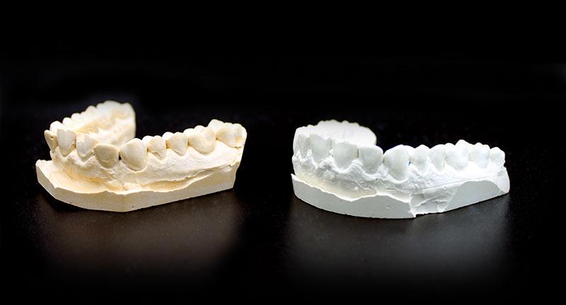 Láthatatlan fogszabályozó