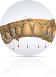 HappySmile invisible orthodontics treatment, 3d modeling